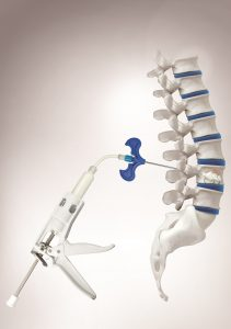 Spinal stenosis device, Epidurolysis procedure