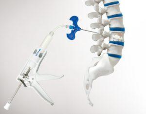 Spinal stenosis device, Kyphoplasty system